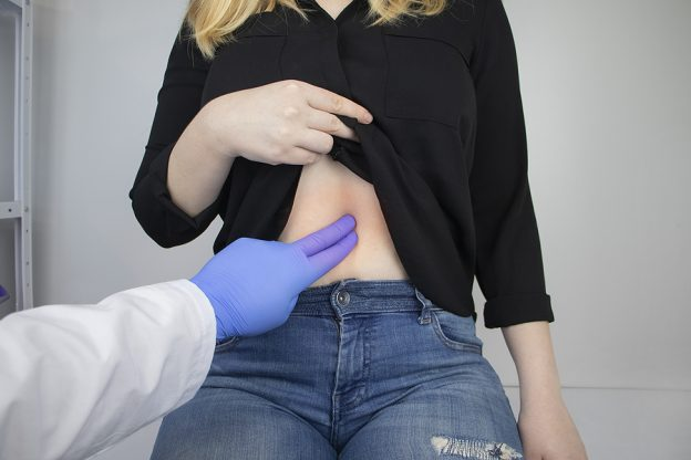 Woman suffering from pain getting checked by specialists gastroenterologists in Melbourne